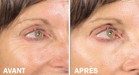 Lizz de velform lift contour des yeux et visage lizz - Contour des yeux acide hyaluronique ...